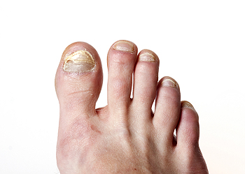 Symptoms and Possible Causes of Toenail Fungus